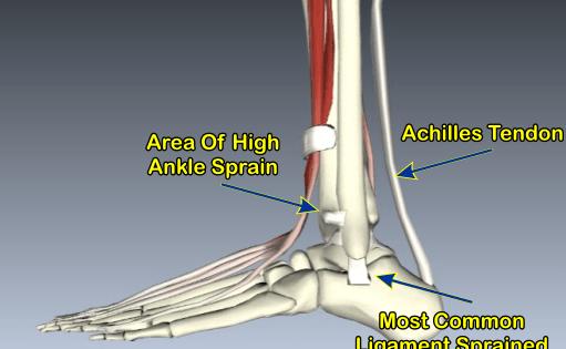 high ankle sprain 511x315 1