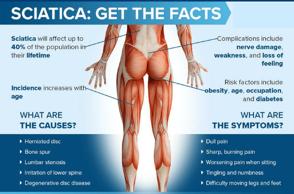 physiofit sciatica 1