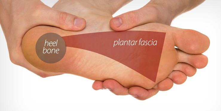 plantar fascia 1
